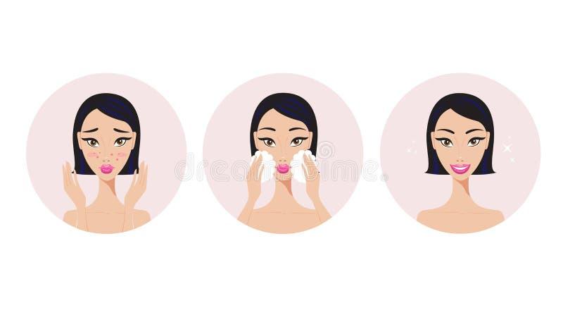 Skincare en acne het Meisje die van behandelingsstappen het product van de gezichtsschoonheid toepassen vector illustratie