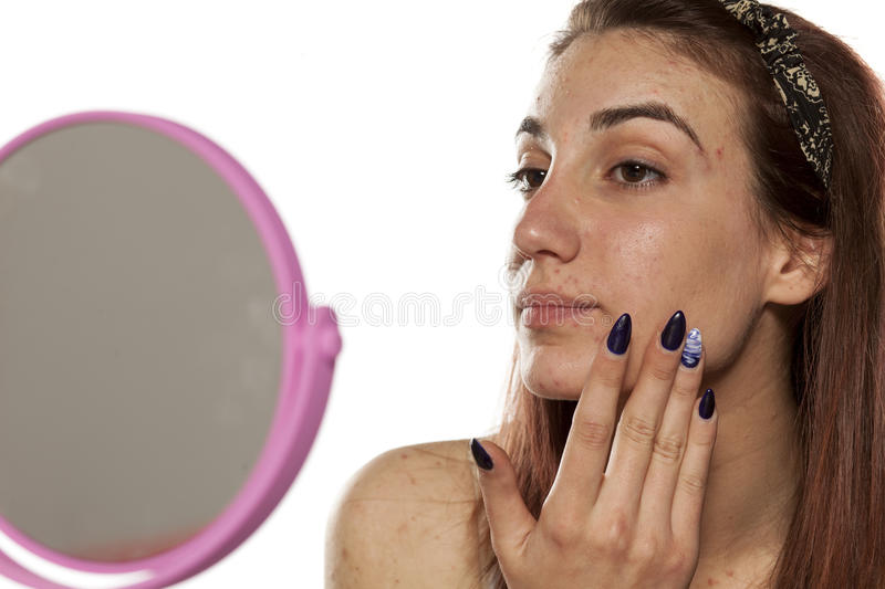 Skincare - pimples. Young girl applying cream for pimples stock images