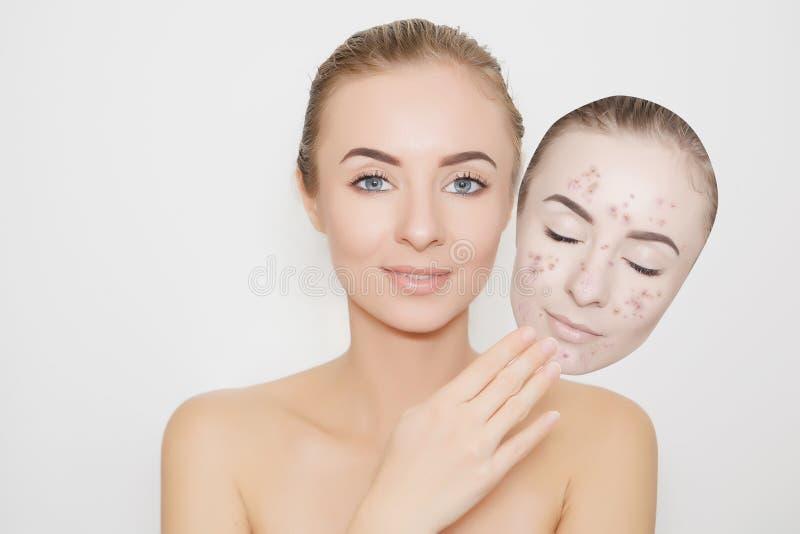 Sking mau ausente posto com espinhas, acne imagens de stock royalty free