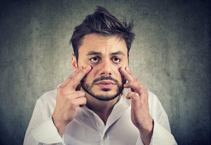 Skołowany mężczyzna z okiem zdojest patrzeć śmieszny zdjęcia stock