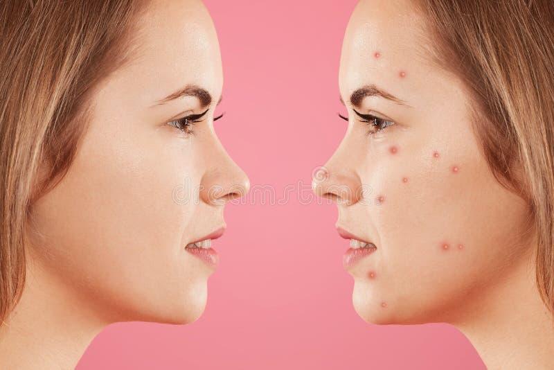 Skottet åt sidan av ` s för två kvinnlig vänder mot: en med sund ren hud och annat med många finnar, har akne, constrast bewtween arkivfoto