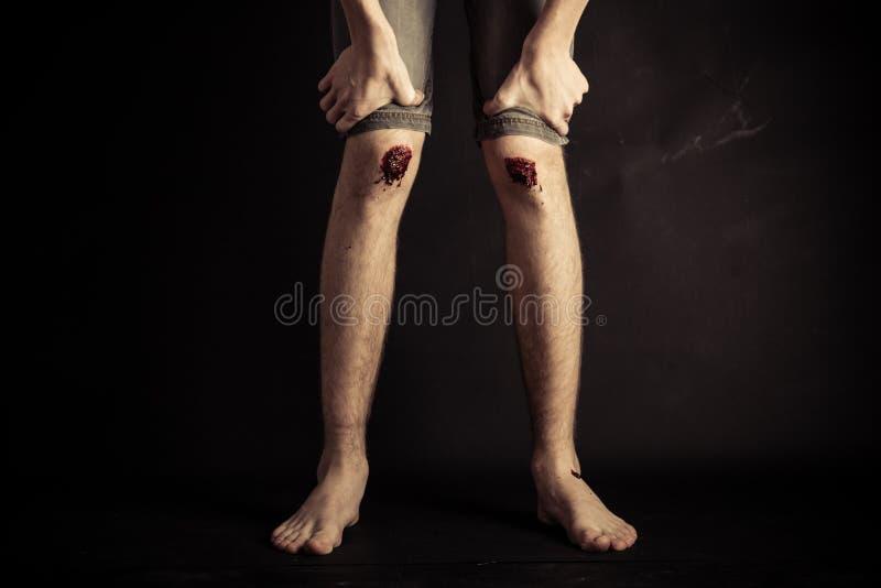 Skrapat upp knä av en barfota ung person arkivfoton