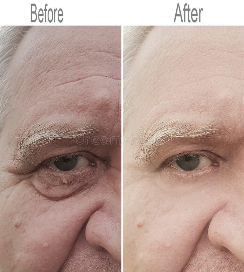 Skrynkla hud, regenerering, öga som är gammalt royaltyfria foton