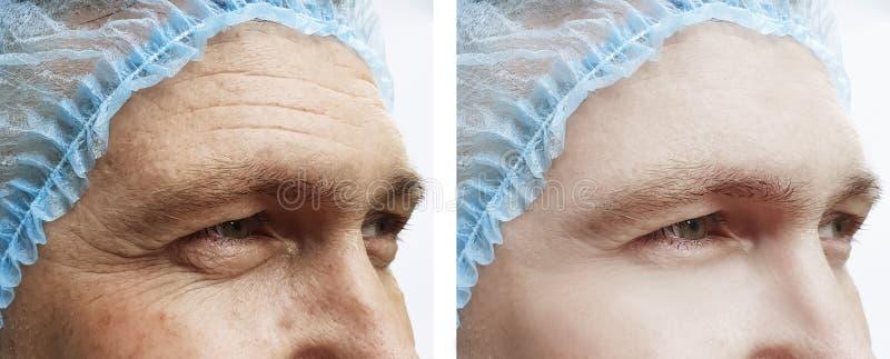 Skrynklor vänder mot behandlingar för effekt för skillnad för påseman före och efter royaltyfria foton