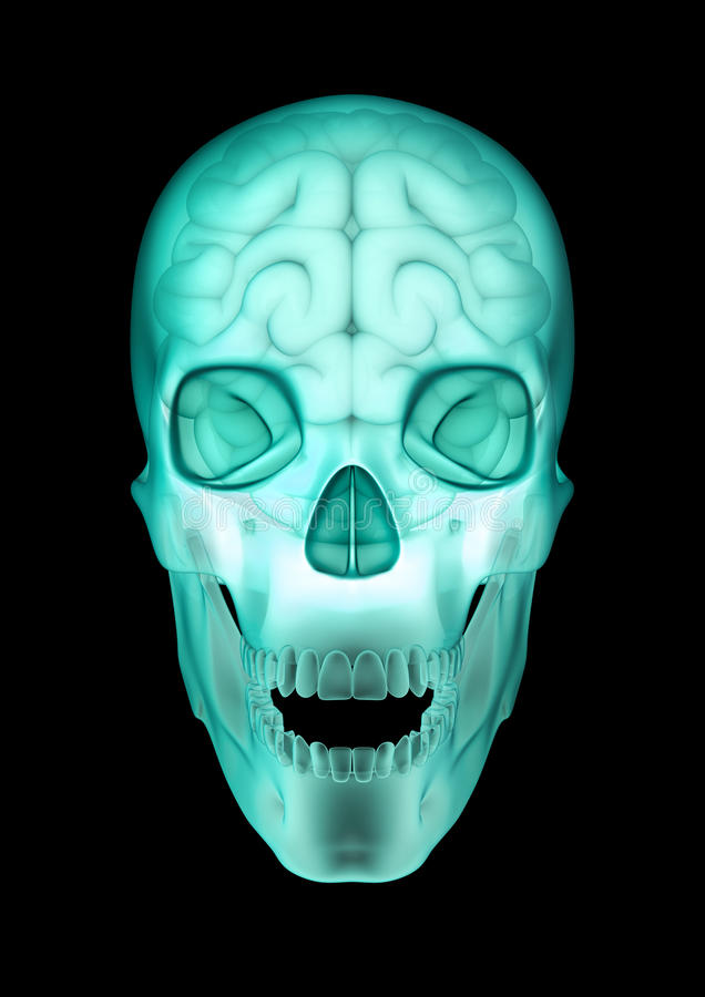Download Skull Brain X-ray Royalty Free Stock Photography - Image: 31608787