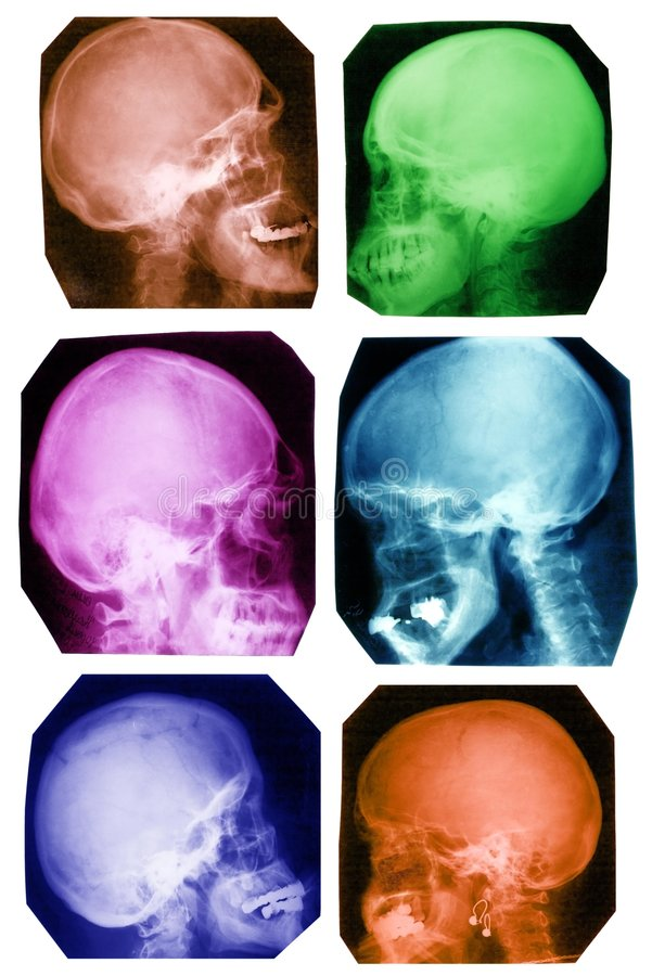 Skull collection in colours. Collection of x-ray pictures of human skulls in differ stock photo
