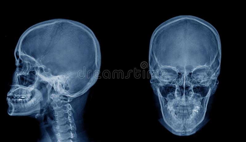 Skull x-ray image AP. And lateral view royalty free stock photography