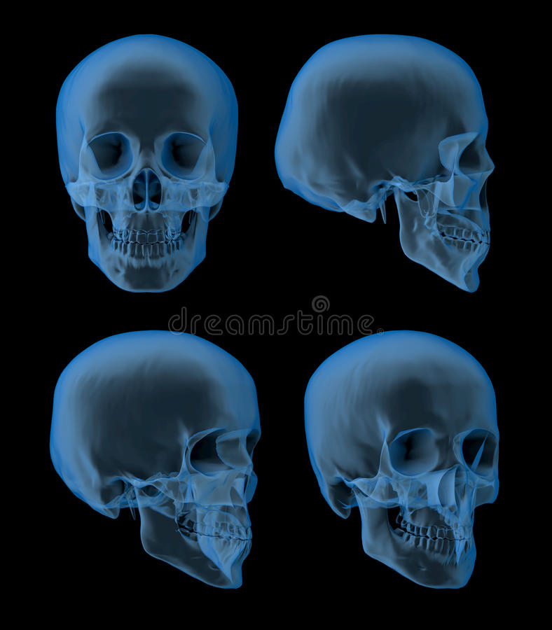 Skull x-ray, views royalty free stock images