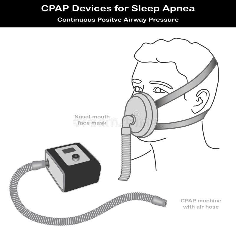 Slaap Apnea, CPAP, Neus - mondMasker stock illustratie