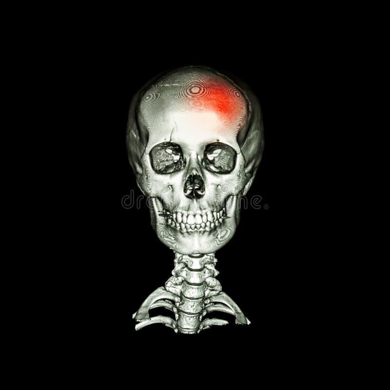 slag CT aftasten met 3D beeld van menselijke schedel en cervicale stekel voorafgaand - latere mening & x28; AP & x29; royalty-vrije illustratie