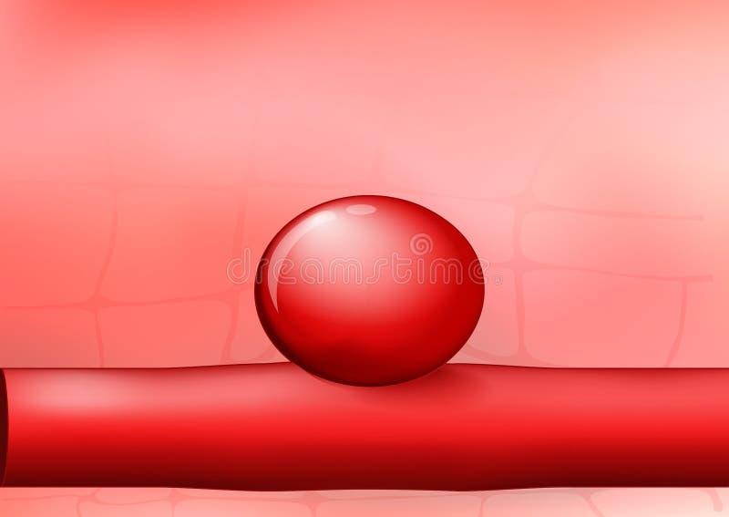 Slagader met een aneurisma op rode achtergrond royalty-vrije illustratie