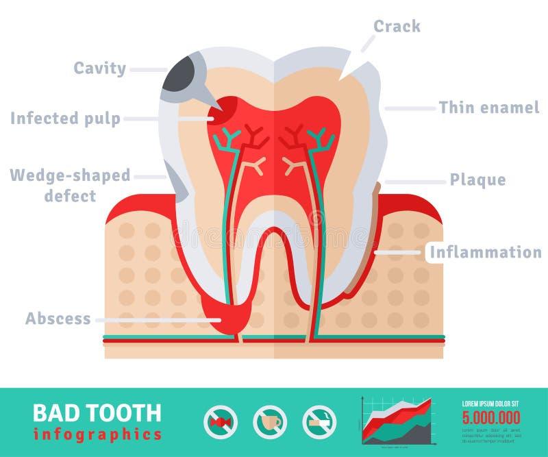 Slecht vlak het pictogramconcept van de tandanatomie vector illustratie