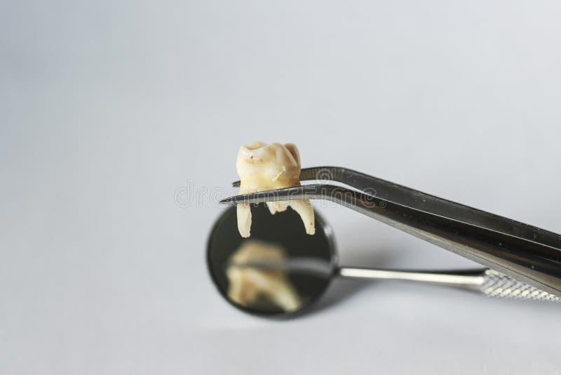 Slechte ongezonde tand verre tandforceps op de achtergrond o stock fotografie