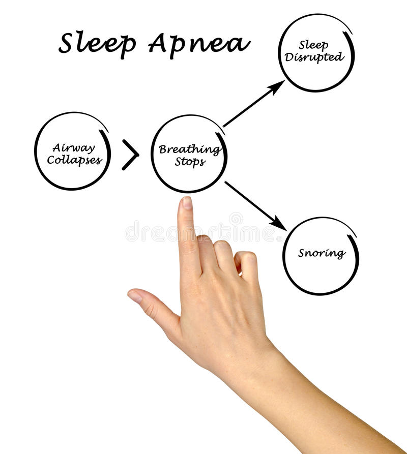 Sleep Apnea. Presenting Diagram of Sleep Apnea royalty free stock photo