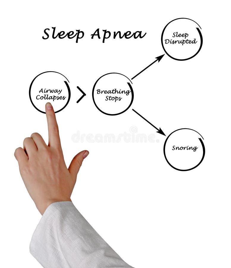 Sleep Apnea. Presenting Diagram of Sleep Apnea stock photo