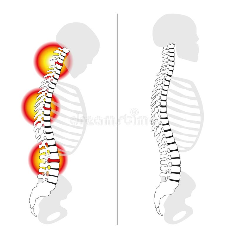 Slipped Disc Prolapse Back Pain Spine royalty free illustration