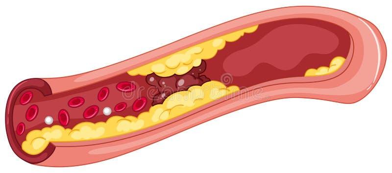 Sluit omhoog beeld van bloedstolsel stock illustratie