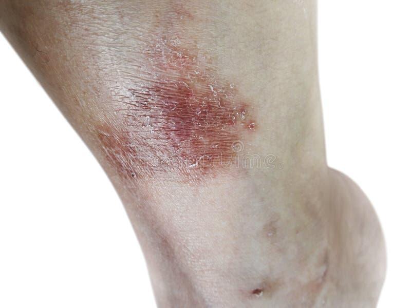 Sluit omhoog dermatitis op huid, de zieke allergische onbesuisde huid van het dermatitiseczema van patiënt, atopic textuur van he royalty-vrije stock foto