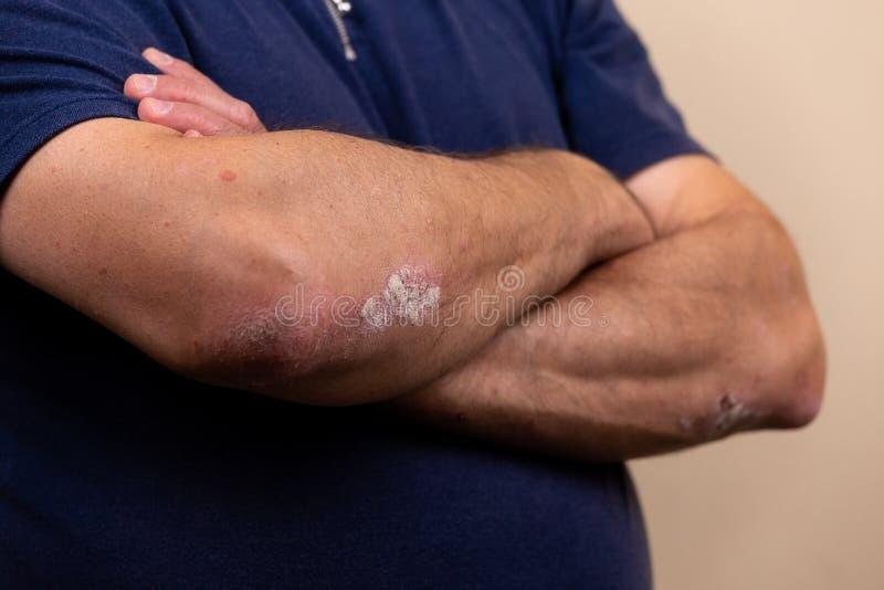 Sluit omhoog dermatitis op huid, ziek allergisch onbesuisd dermatitiseczema van patiënt, atopic textuur van het de huiddetail van royalty-vrije stock afbeelding