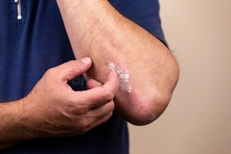 Sluit omhoog dermatitis op huid, ziek allergisch onbesuisd dermatitiseczema van patiënt, atopic textuur van het de huiddetail van royalty-vrije stock fotografie