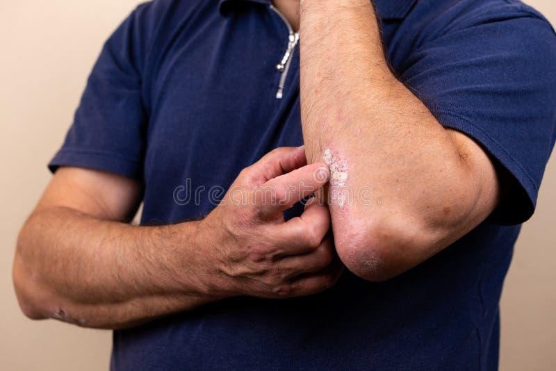 Sluit omhoog dermatitis op huid, ziek allergisch onbesuisd dermatitiseczema van patiënt, atopic textuur van het de huiddetail van stock afbeeldingen