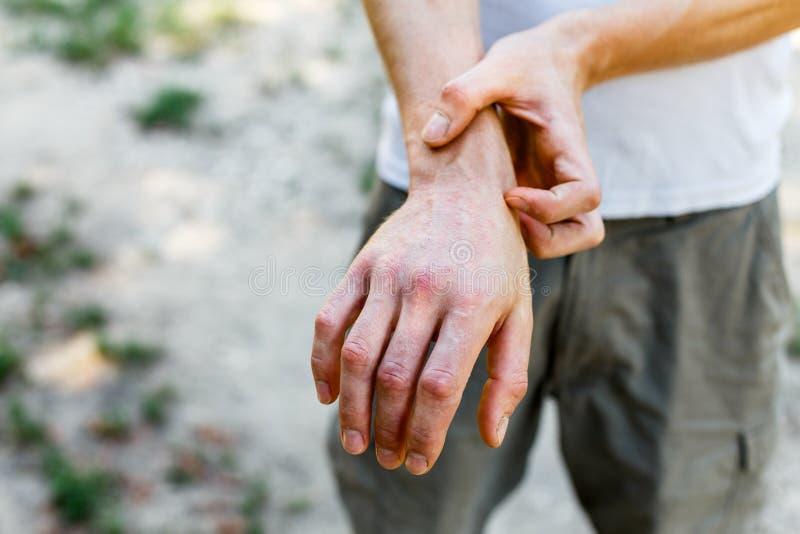 Sluit omhoog dermatitis op huid, zieke allergische onbesuisde eczemahuid van patiënt, atopic textuur van het de huiddetail van he stock foto's