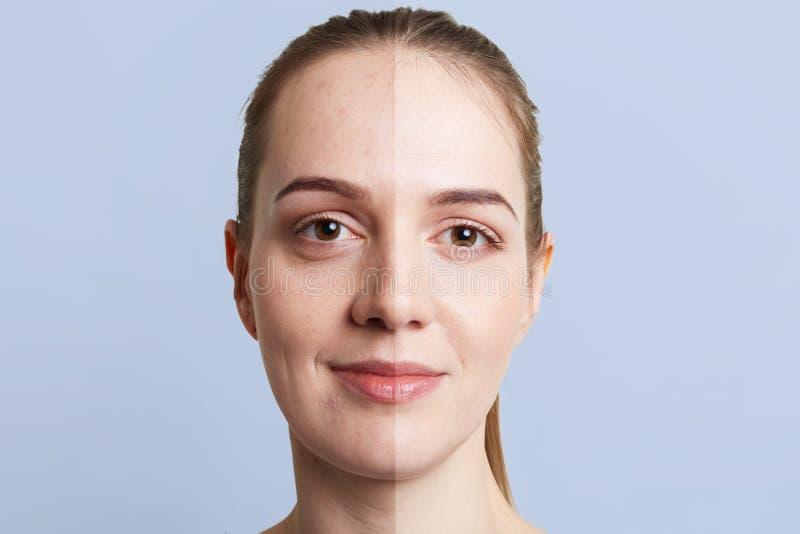 Sluit omhoog portret van vrouwen` s gezicht in twee delen wordt verdeeld dat: gezonde zuivere huid en ongezond met meeëters, cont royalty-vrije stock foto