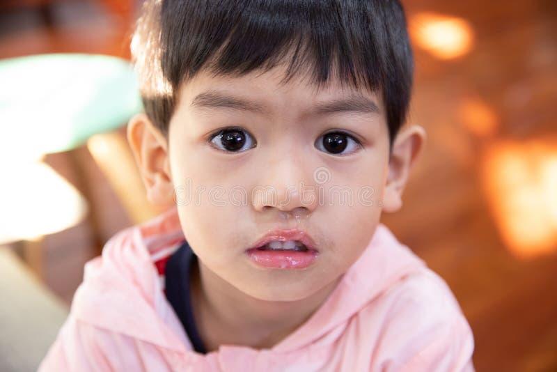Sluit omhoog slijm die van neus stromen, heeft de Aziatische jongen een lopende neus met duidelijk snot royalty-vrije stock foto's