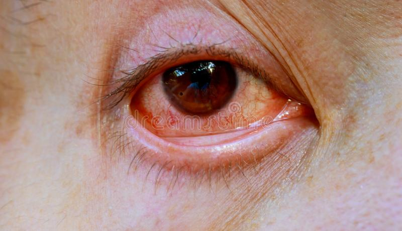 Sluit omhoog van één geërgerd rood die bloedoog van mannetje door bindvliesontsteking of na griep, koude of allergie wordt beïnvl royalty-vrije stock afbeelding