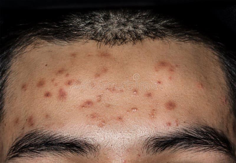 Sluit omhoog van Acne op de huid, Acne op het gezicht door Hormoon wordt veroorzaakt dat stock foto's
