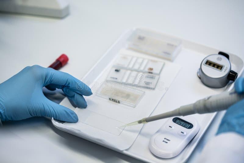 Sluit omhoog van laboratoriumtechnicus die bloedonderzoek voorbereiden royalty-vrije stock fotografie