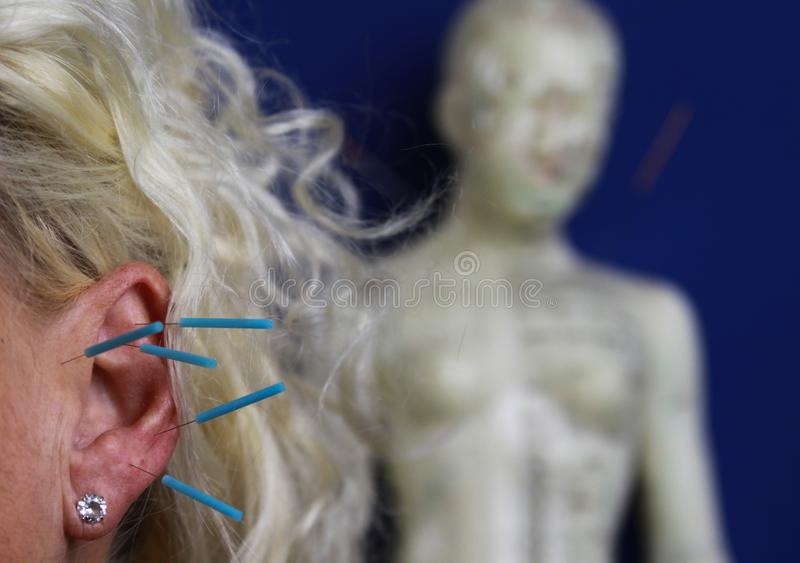 Sluit omhoog van menselijk vrouwelijk oor met blauwe naalden: Ooracupunctuur als vorm van alternatieve Chinese geneeskunde stock fotografie