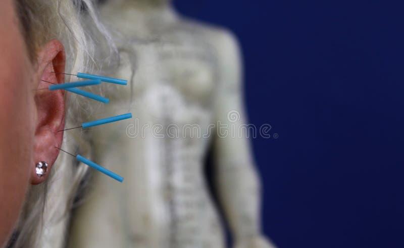Sluit omhoog van menselijk vrouwelijk oor met blauwe naalden: Ooracupunctuur als vorm van alternatieve Chinese geneeskunde royalty-vrije stock fotografie