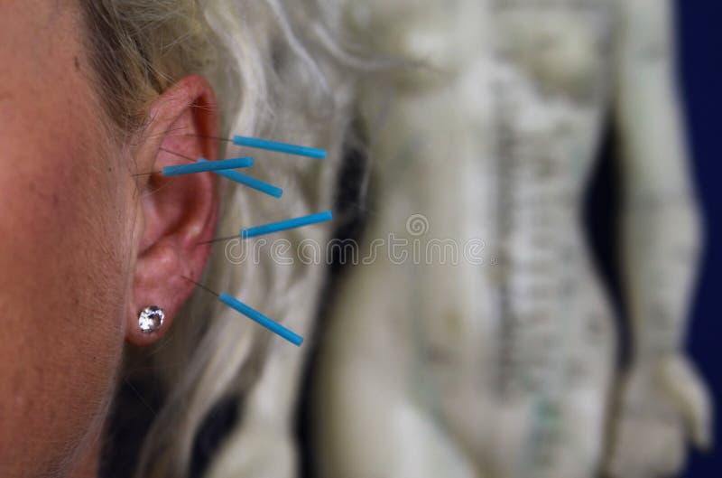Sluit omhoog van menselijk vrouwelijk oor met blauwe naalden: Ooracupunctuur als vorm van alternatieve Chinese geneeskunde royalty-vrije stock foto's