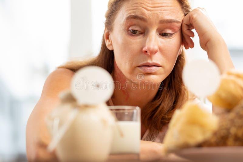 Sluit omhoog van rijpe vrouw met gezichtsrimpels die voedselallergie hebben stock afbeeldingen