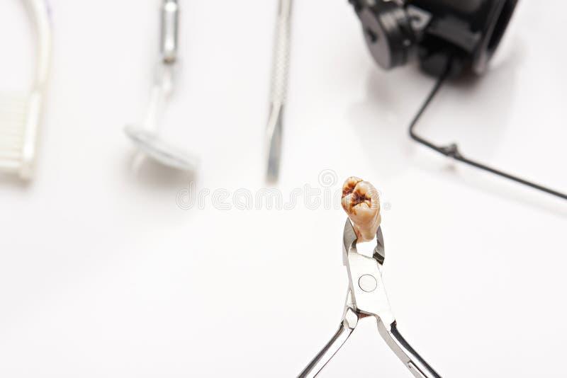 Sluit omhoog van tanden met holte stock afbeeldingen