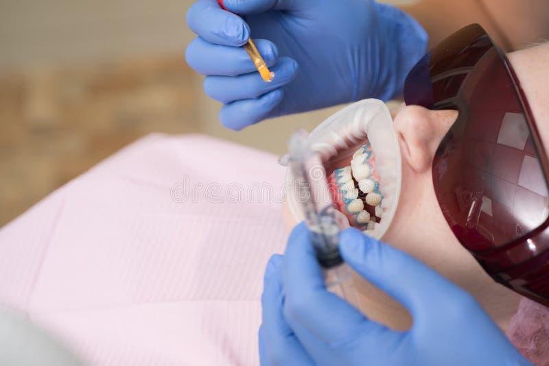 Sluit omhoog van vrouwelijke mond Mooi meisje als tandvoorzitter op het onderzoek bij ultraviolette van tandartsTechnology lamp stock fotografie