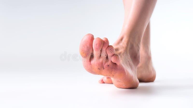 Sluit omhoog vuile voeten grijze achtergrond royalty-vrije stock foto