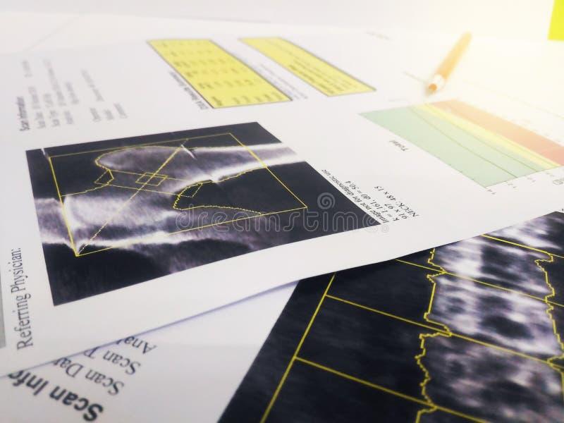 Sluit stethoscoop, omhoog knieschok en stekelmodellen Gezet op een rapport van de beendichtheid te zacht en onscherp beeld stock foto