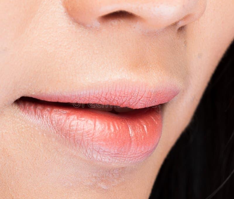 Slut för hud för vårta för akne för kroppsdelmunkant upp kvinna royaltyfri bild