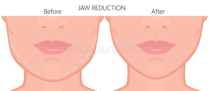 Slut för kirurgi för framsidafront_Jawförminskning upp 1 stock illustrationer