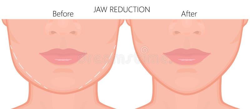 Slut för kirurgi för framsidafront_Jawförminskning upp 2 royaltyfri illustrationer