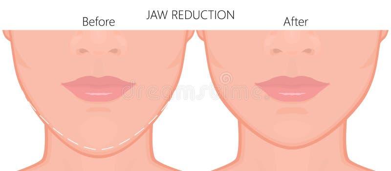 Slut för kirurgi för framsidafront_Jawförminskning upp 3 vektor illustrationer