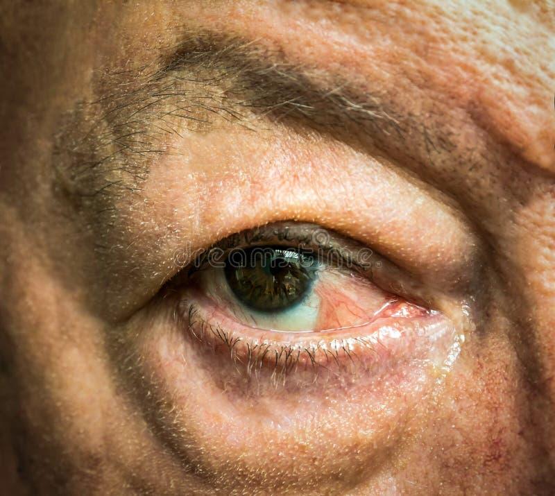 Slut upp av ögat med pseudopterygium royaltyfria foton