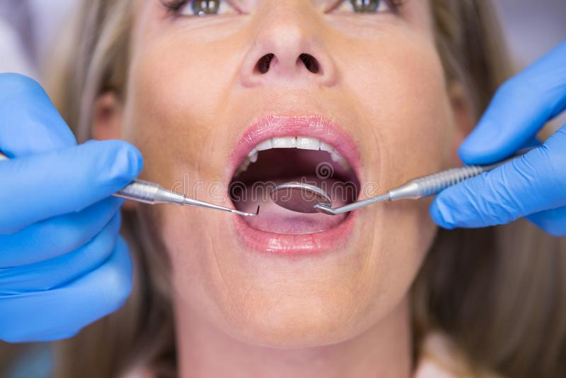 Slut upp av den undersökande patienten för tandläkare royaltyfri foto