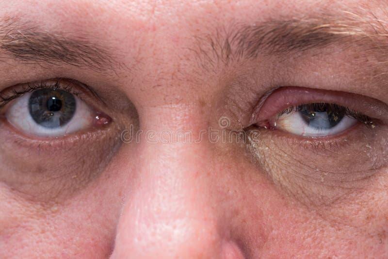 Slut upp av det infekterade ögat royaltyfri bild