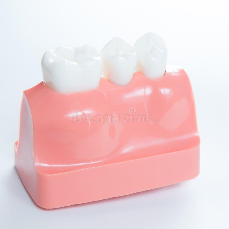 Slut upp av en modell för tand- implantat royaltyfri bild
