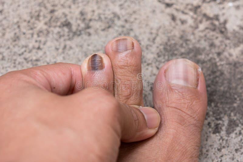 Slut upp av Nail infektioner royaltyfri fotografi