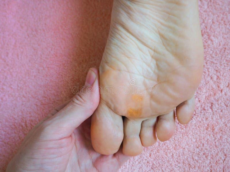 Slut upp av valkar Smärtsam havre på fötter arkivfoto