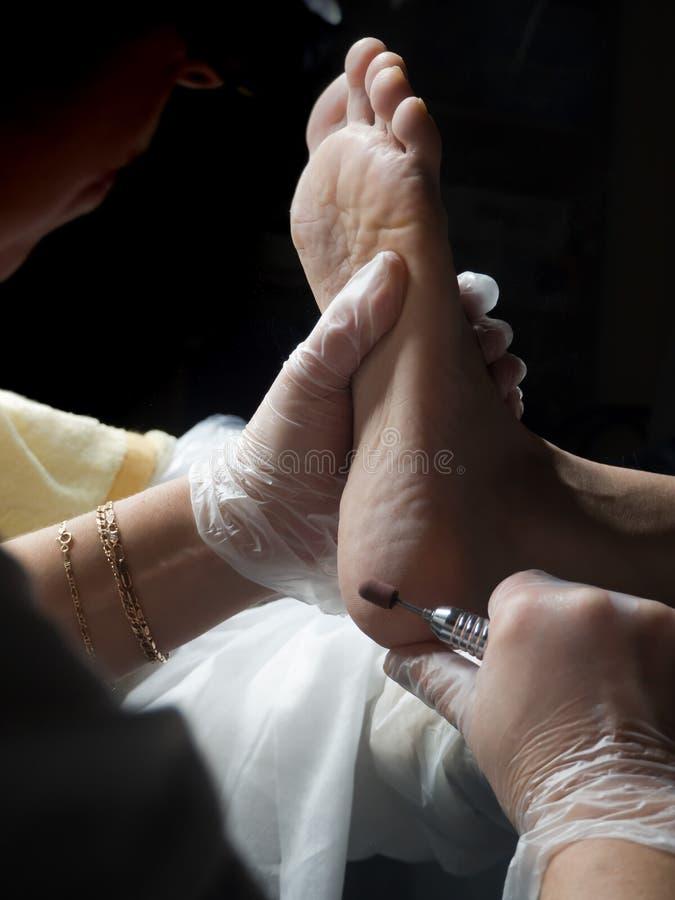 Slut upp av valkar Smärtsam havre på fötter Behandling av havre på foten arkivfoto